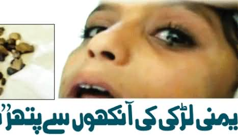 Instead of Tears Tiny Stones Drop From The Eyes of A Yemeni Girl